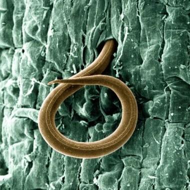 Il veleno dei vermi parassiti può aiutare a curare la celiachia?
