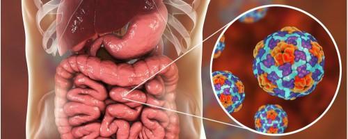 La celiachia può essere causata da un\'infezione gastrointestinale durante l\'infanzia?