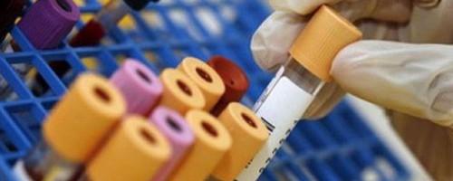 Test Celiachia: come fare la diagnosi